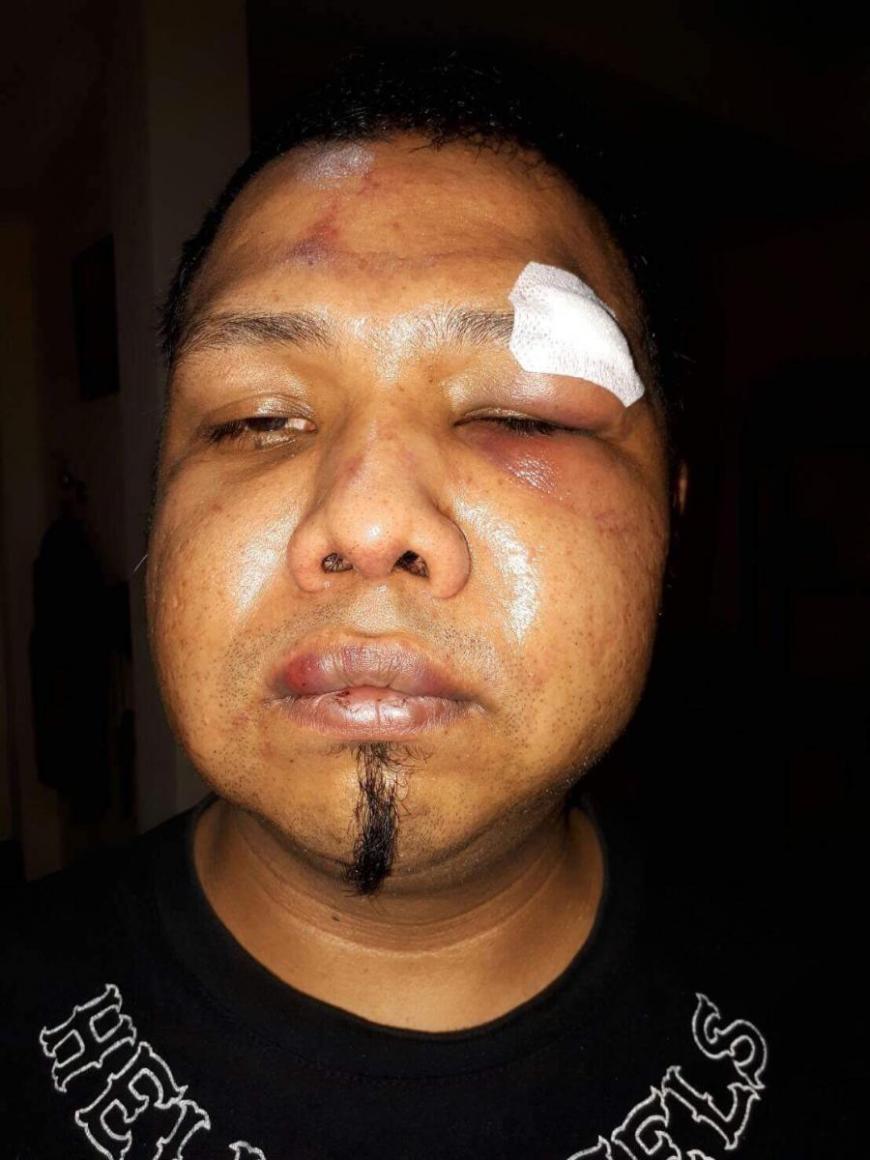 Zweite Variante des Vorfalls bei den Hells Angels in Pattaya