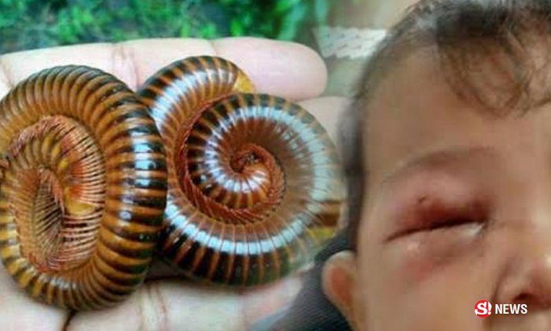 Eine Mutter berichtet, dass ihr kleiner Junge durch das Gift eines Tausendfüßler fast erblindet wäre.