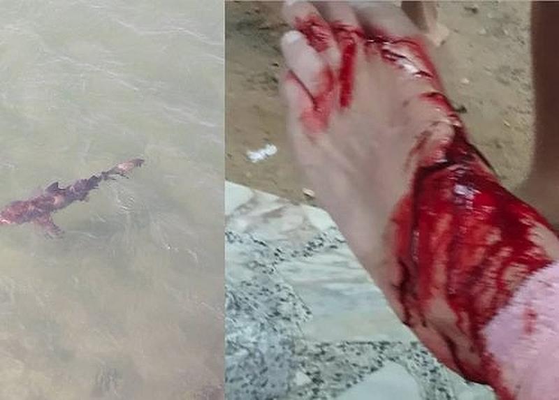 Thailändische Behörden bestätigen den Hai Angriff in Hua Hin
